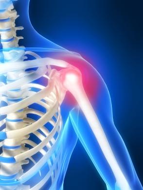 shoulder-pain-pump1